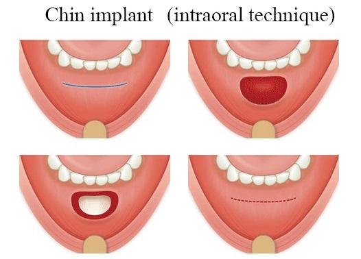 การทำคางจากด้านในช่องปาก
