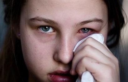 วิธีรักษาอาการตาบวม
